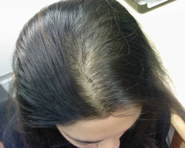 """""""Destructions of hair follicles and they become in scar tissues"""". Scarring alopecia affects both male and female, it may be occur in earlier stage of life, middle age and last stage of life. Before talking about scarring alopecia treatment, I want to share some key points of scarring alopecia which is helpful for you. Scarring …"""