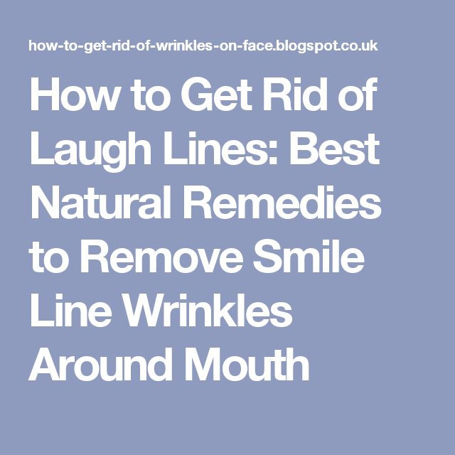 How to Get Rid of Laugh Lines: Best Natural Remedies to Remove Smile Line Wrinkles Around Mouth