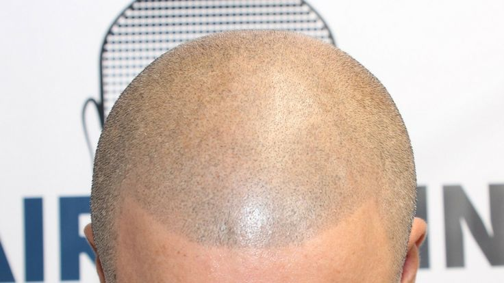 Repairing Bad Scalp Micropigmentation Treatments • by Hairline Ink | Hairline Ink