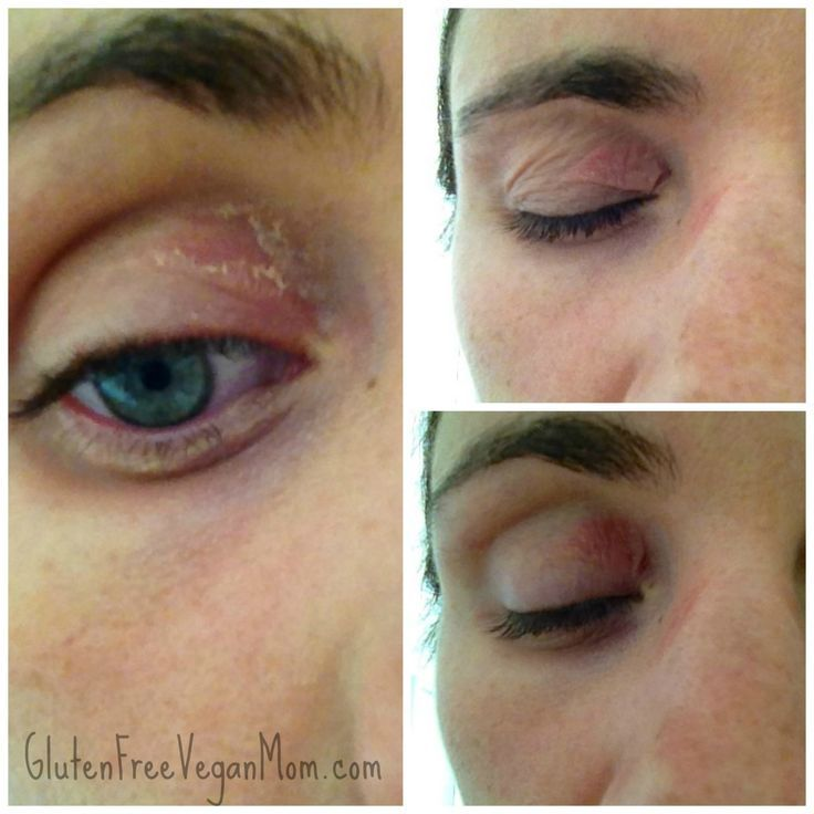 Makeup For Allergy Eyes Makeupview Co Allergy Eyes Allergy Treatment Nickel Allergy