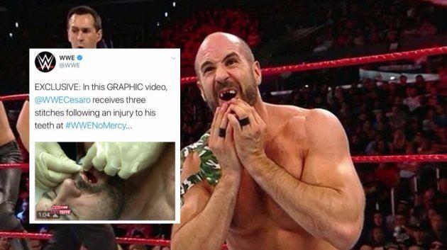 Video: Ngerinya! Penggusti terkenal WWE hilang 3 gigi hadapan ketika beraksi secara langsung   Video: Ngerinya! Penggusti terkenal WWE hilang 3 gigi hadapan ketika beraksi secara langsung  Kami pasti ramai diantara anda merupakan peminat tegar sukan gusti atau lebih dikenali dengan WWE. Zaman dahulu memang layan sebab ada The Rock Stone Cold Steve Austin Ric Flair Hulk Hogan dan ramai lagi. Kita juga sedia maklum bahawa aksi lawan itu semua hanya lah lakonan dan untuk hiburan semata-mata…