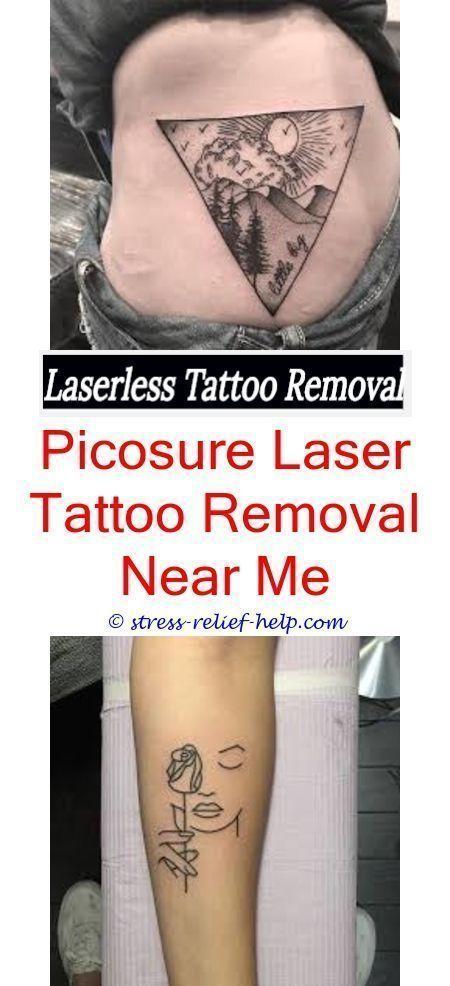Enlèvement permanent de tatouages car le retrait de tatouages   – DIY Tattoo Dauerhaft Blog