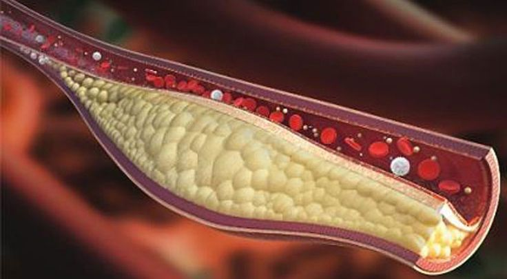 Konec lékům na cholesterol: Jediná dávka těchto ořechů ho sníží na 30 dní…