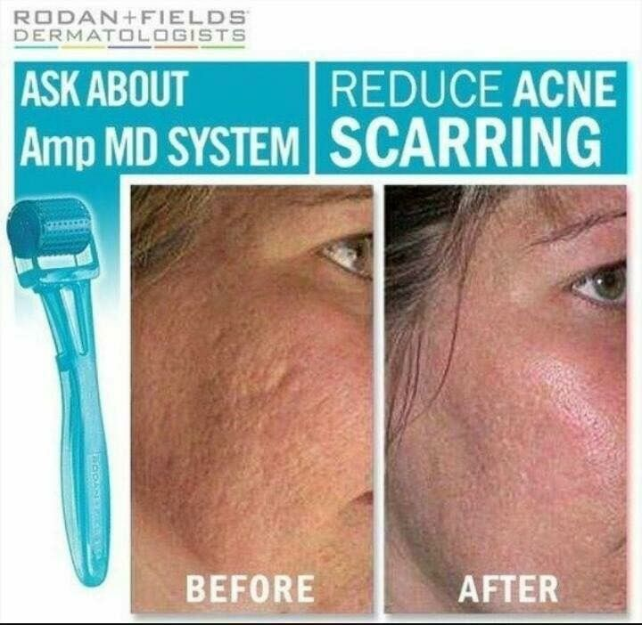 Rodan + Fields Skincare Review with FREE Mini Facial ...