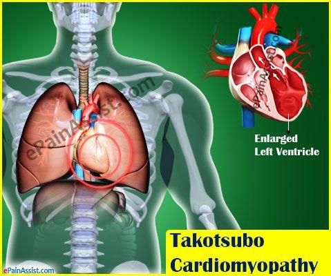 Takotsubo Cardiomyopathy or Broken Heart Syndrome