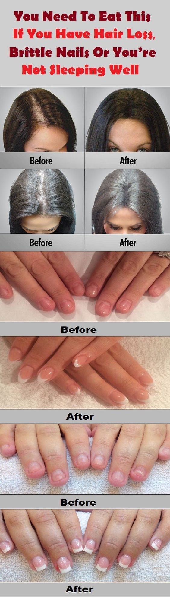 How to remove exaggerated nails at home without problems and negative consequences