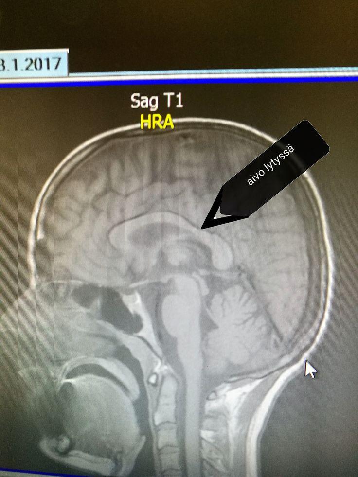 Kuoppa aivossa, olikohan tyttären vai minun omat? en muista. Mutta huomaa hyvin tiheä visuaalinen cortex - osaisin jäljeltää Muna Lisan, jos olisin joskus nähnyt.