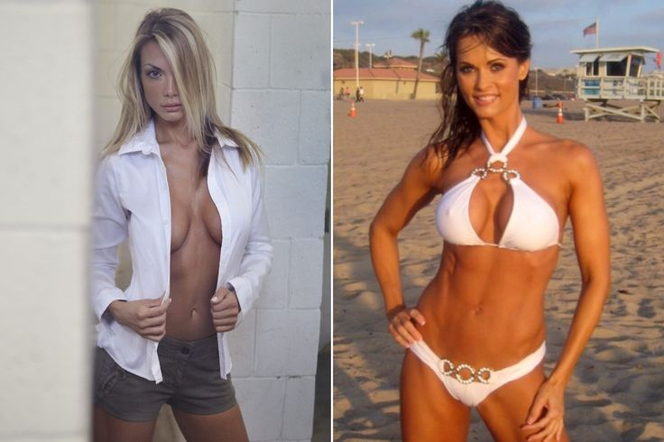 Fitness News.   Former Playboy Models Get Their Breast Implants Removed Believing They Caused Illness. Karen McDougal and Kimberly Holland both believe they suffered from breast implant illness. PLASTIC SURGERY