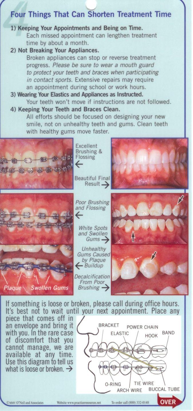 Best 141 Life with Braces! images on Pinterest | Teeth braces, Brace ...