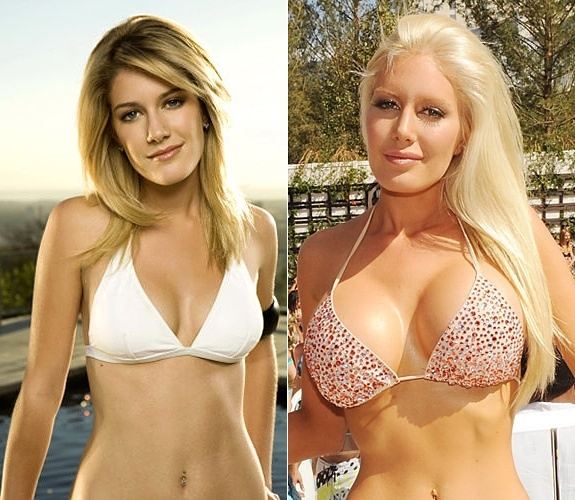 Heidi Montag : Plastic Surgery Gone Wrong... How many Women AND Men alike would agree that she looked better BEFORE she had all this work done? Yeah, Maybe her chest is bigger but look at how pretty she looked before! These poor Body Dysmorphic  women that think they need to change everything to be accepted in Hollywood.