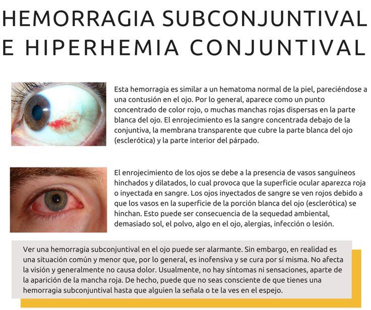hemorragia subconjuntival hiperemia conjuntival