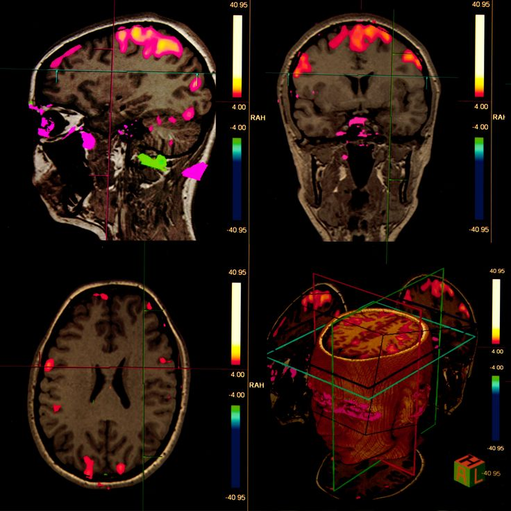 Citation: Ciarmiello A. MR-based attenuation correction in brain PET/MR studies: A short review. Journal of Diagnostic Imaging in Therapy. 2017; 4(1): 29-34. http://dx.doi.org/10.17229/jdit.2017-0410-028