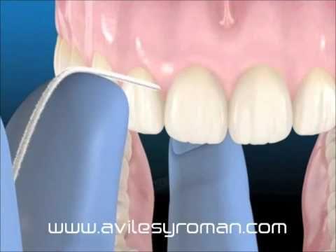 Uso de la Seda Dental - Higiene Oral