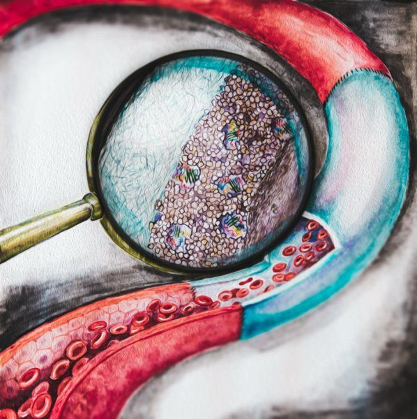 Artificial Blood Vessels Become Resistant To Thrombosis | Scientists have developed artificial blood vessels that are not susceptible to blood clot formation. The achievement was made possible by a new generation of drug-containing coating applied to the inner surface of the vessel. The new coating can save patients from lifelong intake of anticoagulants and even additional surgical interventions. [The Future of Medicine: http://futuristicnews.com/tag/future-medicine/]