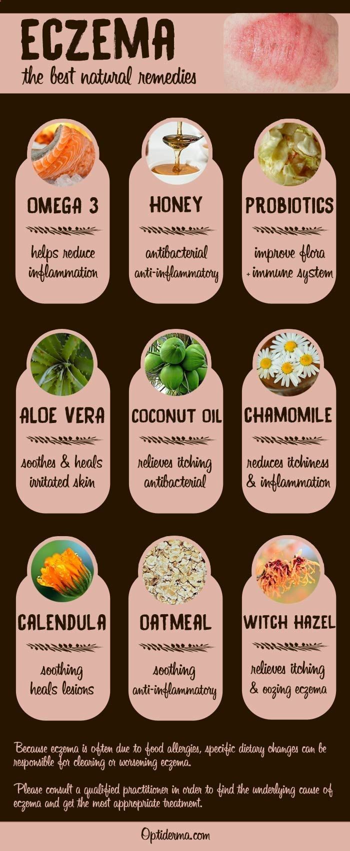 Heres a list of the best natural remedies for eczema: omega 3, honey, probiotics, aloe vera, coconut oil, chamomile, calendula, oatmeal, witch hazel. Which one to try? Check this out: www.optiderma.com...