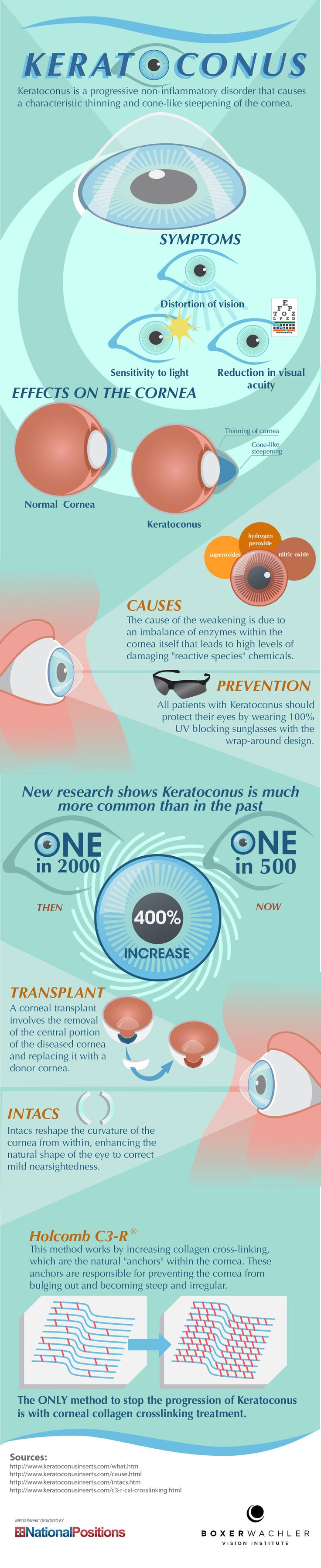 Depending on the progression of the keratoconus, an ophthalmologist might recommend a lens such as contacts or intacs. If the condition has progressed far enough, a corneal transplant might be needed. Another treatment option is a method called collagen cross-linking. An ophthalmologist that specializes in keratoconus will best be able to choose the most effective treatment for the patient.