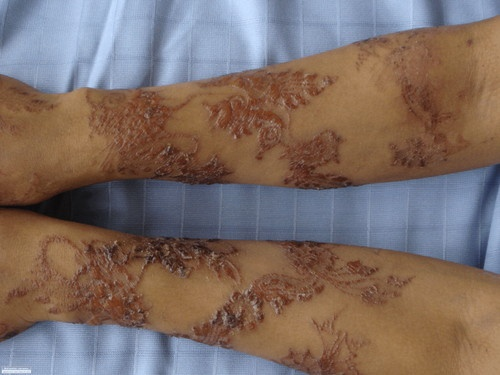 "Henna Tattoo Ink Smeared: 13 Best ""Black Henna"" Scars Images On Pinterest"