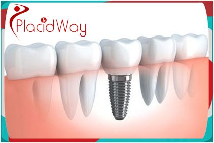Dental Implants, one of the most common #dental procedures performed in the entire world; are small pieces of titanium created to replace missing #teeth. So if you want to know the best #dentalimplants in Mexico, just contact PlacidWay and call us at +1.303.500.3821