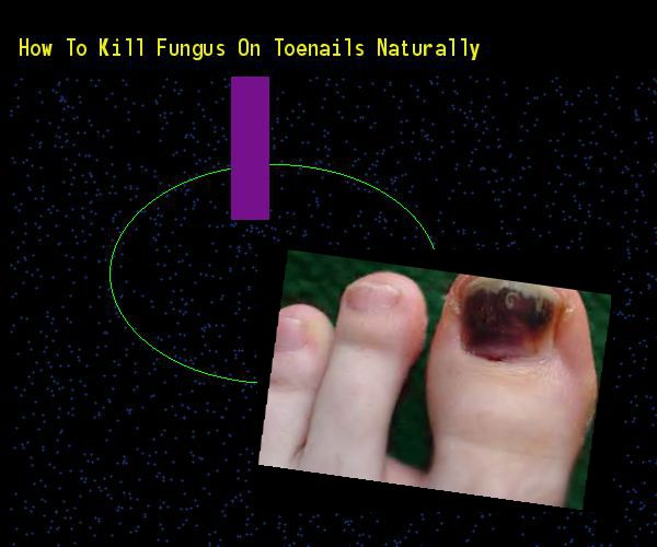 How to kill fungus on toenails naturally - Nail Fungus Remedy. You have nothing to lose! Visit Site Now