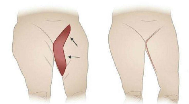Met deze oefening voor je dijen zal je overtollige vet omgezet worden in spieren! - Gezonde ideetjes
