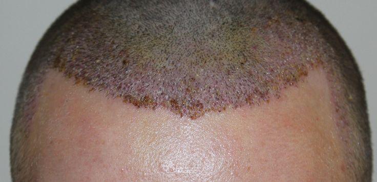 professionelle Haartransplantation mittels der FUE-Methode. Manuelle Extraktion der Grafts. Natürliche Haarlinien mit dense packing. Dichtes Haar www.fue-hlc.com