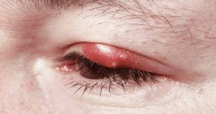 Home Remedies for Eye Stye Treatment Naturally