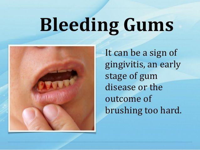 #DentalProblems #GumBleeding #DentalCare