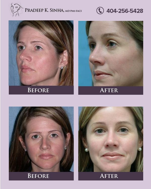 A brow lift and forehead lift help correct expression lines and signs of aging in upper part of the face.