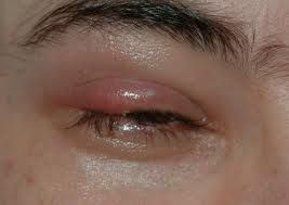 Stye In Your Eye--Top 10 Natural Remedies - 1- wash and keep clean, 2- hot compress three or four times a day, 3- tea bags 4- drink dandelion tea, 5- Guava leaves 6- Aloe apply on stye, 7- Parsley tea use on stye, 8- Coriander tea drink it, 9- Cloves soak apply to stye, 10- potato mashed cover stye reduces swelling -Collective Whizdom -healthy body, healthy mind, healthy life