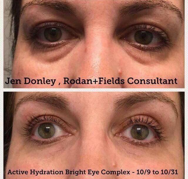222 Best Rodan Fields Images On Pinterest Acne Skin
