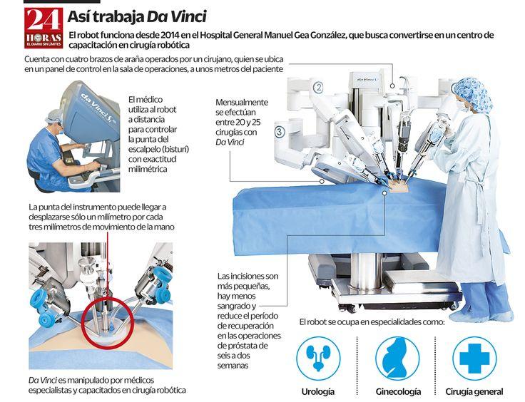 Curan cáncer de próstata con escalpelo robótico (+infografía) | 24 Horas