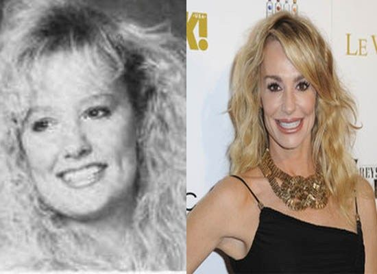 Taylor Armstrong Plastic Surgery Before and After - http://www.celeb-surgery.com/taylor-armstrong-plastic-surgery-before-and-after/?Pinterest