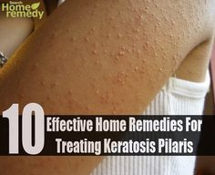Home remedies for getting relief from Keratosis Pilaris