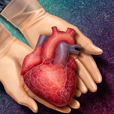 Heart transplant surgery is a surgical procedure in which Surgeon will replace the failing heart with a healthy heart.  For more:-  https://www.docopd.com/procedures/heart-transplantation