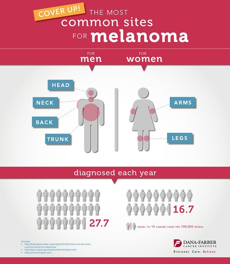 What are the Most Common Sites for Melanoma? Infographic – Insight #melanoma #blogs http://loan-credit.nef2.com/what-are-the-most-common-sites-for-melanoma-infographic-insight-melanoma-blogs/  # What are the Most Common Sites for Melanoma? [Infographic] Updated May 24, 2017 Melanoma. the most severe form of skin cancer, results from an interaction between the genetics of the individual and damage to DNA from external factors. In the case of melanoma, most of the environmental damage is due…