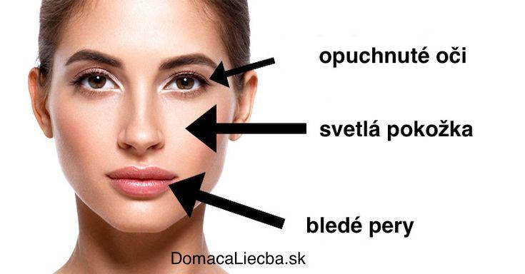 Mnoho ľudí trpí nedostatkom nejakého vitamínu alebo minerálu, ale o tom ani nevedia. Tu je 5 znakov, ktoré dokážete vyčítať z vašej tváre.