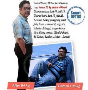 Obat Pelangsing Perut Buncit Alami Terbaik Samping | Easy Pack Smartdetox https://www.bukalapak.com/p/perawatan-kecantikan/pelangsing/obat-pelangsing/43td8b-jual-obat-pelangsing-perut-buncit-alami-terbaik-samping-easy-pack-smartdetox