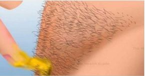 Esto hago yo para remover todo el vello corporal, incluso de mi parte intima sin cera ni afeitadas.   Salud con Remedios