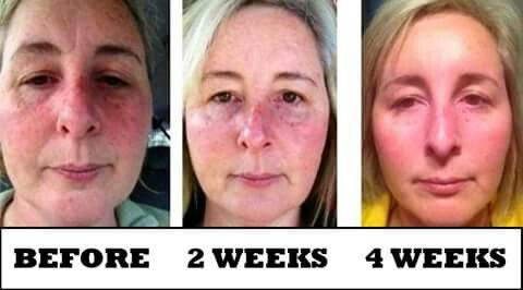 Luminesce serum 30 days money back guarantee.