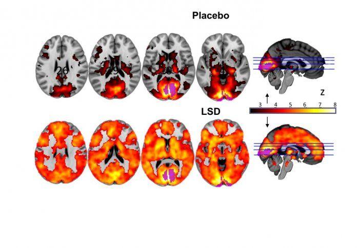 Les effets du LSD sur le cerveau n'avaient jamais été observés à l'aide des techniques d'imagerie modernes. C'est désormais chose faite.