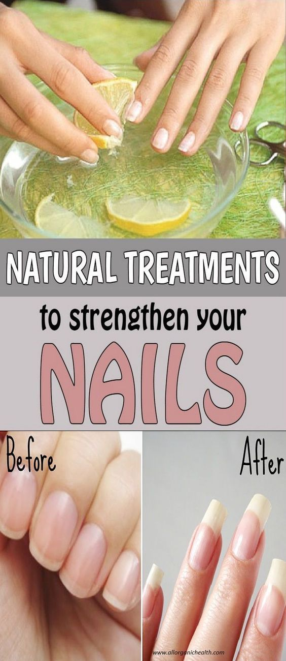 Natural treatements to strengthen your nails
