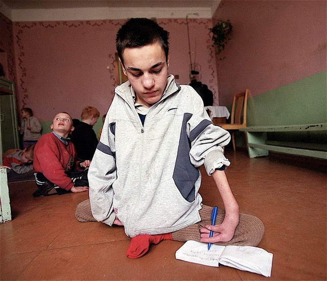 Second generation victim of Chernobyl. DNA damage will cause several more generations of deformities, mental retardation, and high cancer rates. Is nuclear energy worth the risk?