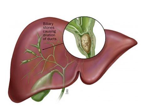 Clogged Liver