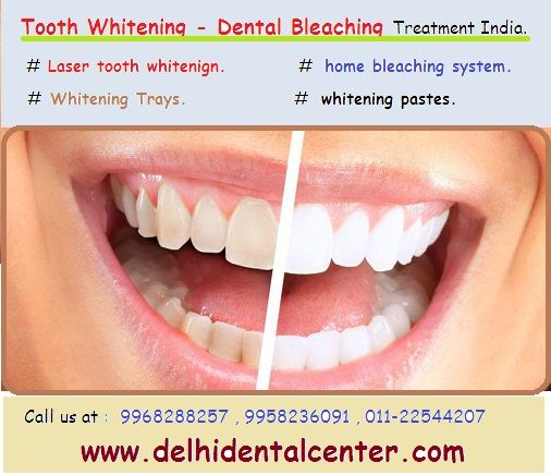 #Tooth_Whitening_Delhi #Tooth_Whitening_India #Laser_Tooth_Whitening_Delhi #Dentist_Delhi #Dentist_India http://goo.gl/wPmR9t