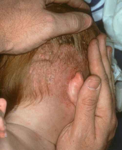 Langerhans cell histiocytosis (2). Closer inspection reveals numerous small erythematous to brown papules and petechiae..