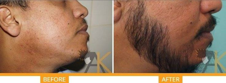 Facial Hair Transplant Service in ‪#‎Ludhiana‬ and ‪#‎Delhi‬ From ages, facial hair have been considered as sign of masculinity in ‪#‎men‬; not only men but also ‪#‎women‬ are . With the success of ‪#‎hairtransplant‬, more and more number of youth are undergoing facial hair transplant - ‪#‎beard‬ transplant, moustache transplant, ‪#‎eyebrow‬ transplant. We can use any technique ‪#‎FUE‬ or ‪#‎FUT‬ for the same. Fix your Appointmet With ‪#‎Doctor‬ Here…