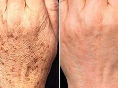 Il rimedio naturale che elimina le macchie della pelle in 15 giorni