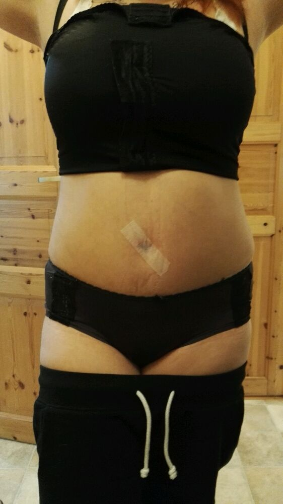 Day 12 after tummytuck & lipo
