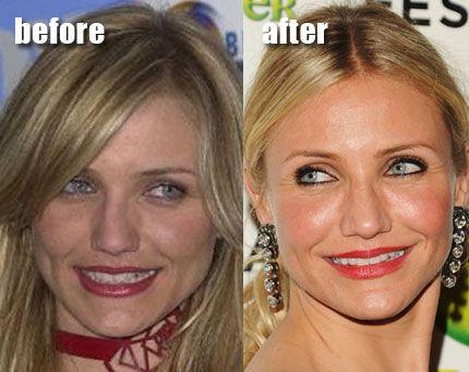 Bethenny Frankel Plastic Surgery: Jaw Reduction & Facelift ...