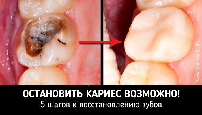 Известный врач из США Дэвид Вульф провел исследование и доказал, что кариес вполне реально не только остановить, но и восстановить пораженные им зубы.